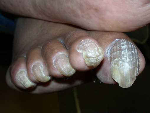 San Francisco Foot & Ankle Group - Nail Problems