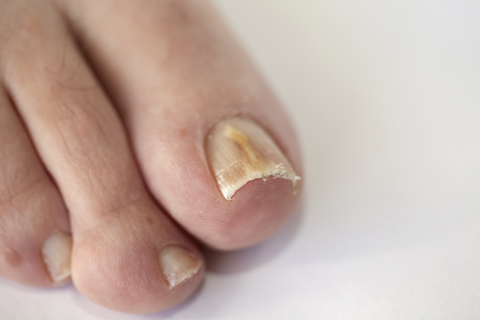 Image depicts a typical toenail fungus